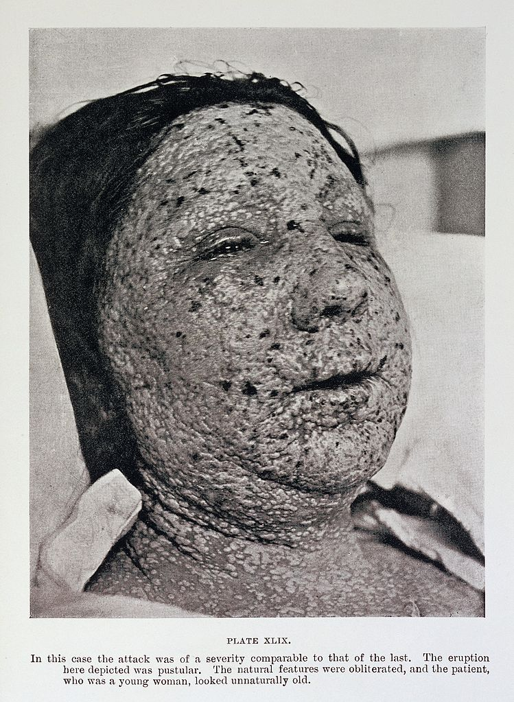 749px-Pustular_eruption_of_smallpox_on_face_Wellcome_L0032957